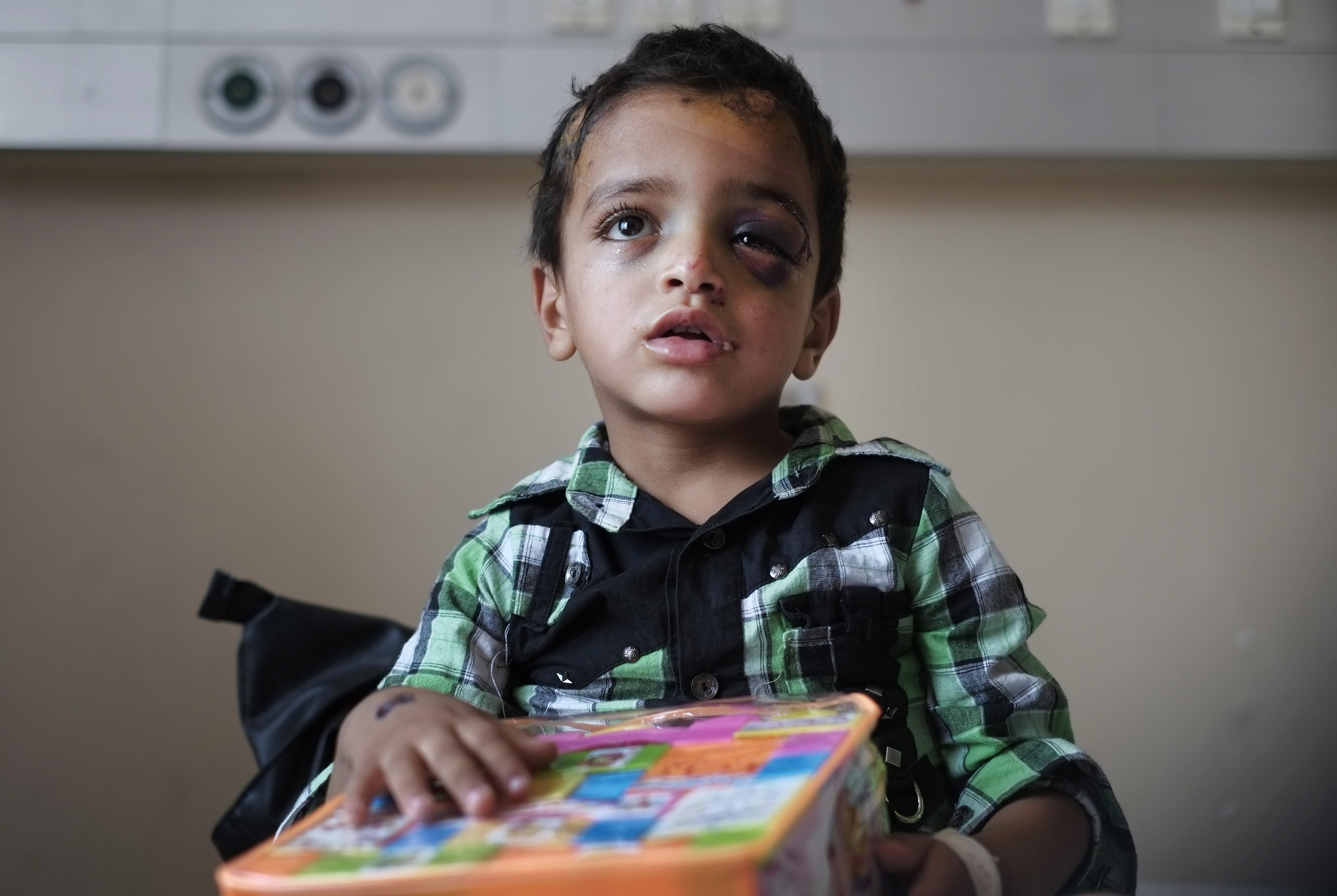 Marwan Hassanein, 4, gets a gift for Eid at Shifa Hospital in Gaza City, where he's being treated for shrapnel wounds to his head July 28, 2014.