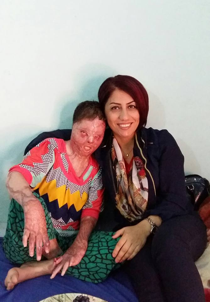 Sarah Said Haydar (left), shown here with a Yazidi activist, suffered burns over more than half her body in a suicide attempt.