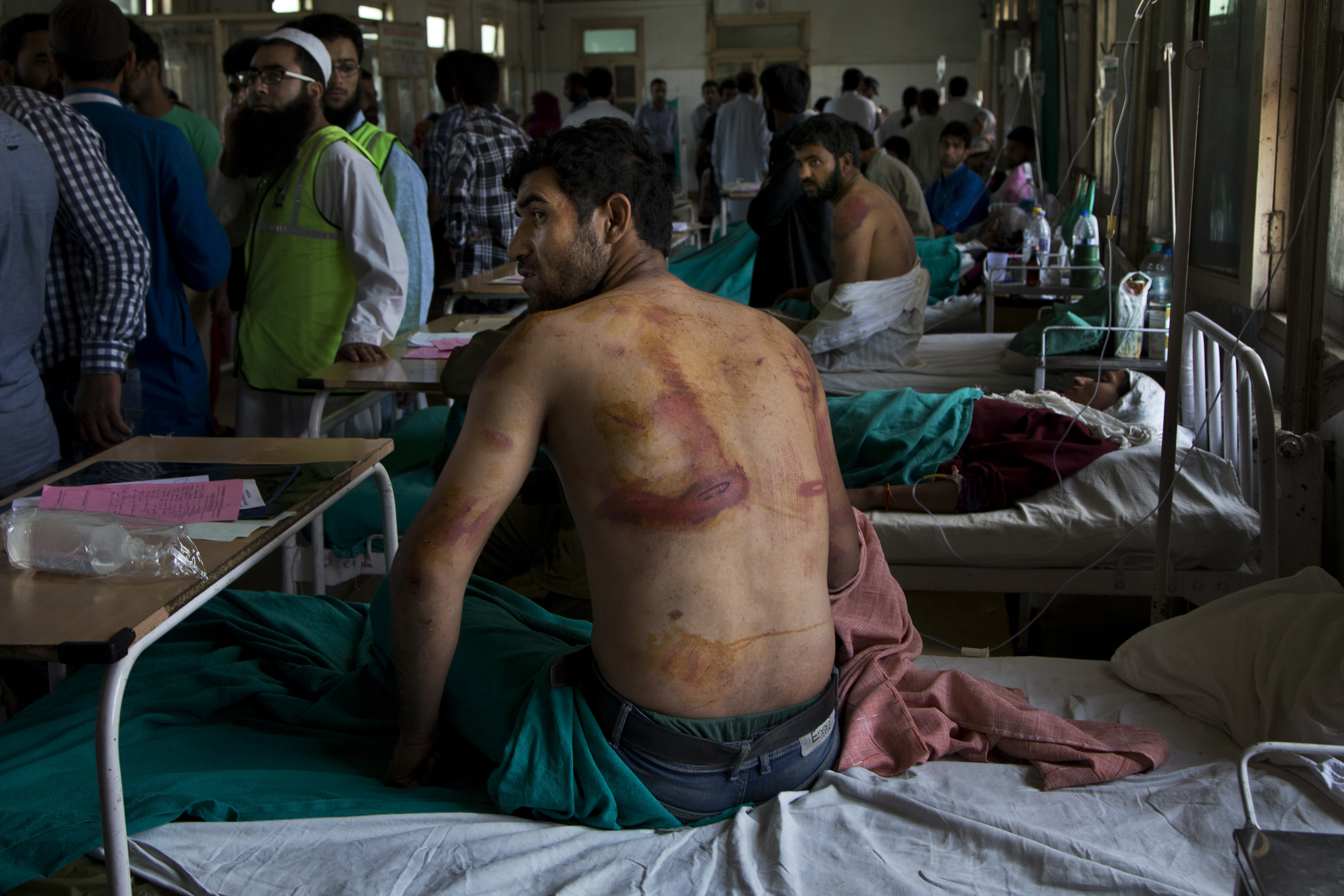 In this Aug. 18, 2016 file photo, Sameer Ahmed, a Kashmiri man allegedly beaten up by Indian soldiers at Khrew village, recovers at a local hospital in Srinagar, Indian controlled Kashmir.