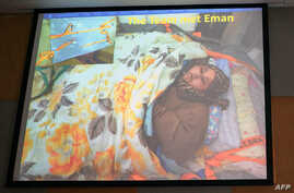 An image of Egyptian national Eman Ahmed Abd El Aty, who weighs around 500 kilograms (1,100 pounds), is displayed at a press conference attended by her Indian bariatric surgeon Muffazal Lakdawala in Mumbai, Feb.13, 2017.