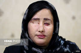 Soheila Jorkesh, one of four women attacked with acid in Iran's Isfahan in 2014, appears in this photo published July 20, 2018, by state news agency ISNA, which interviewed her about her ongoing legal battle for justice.