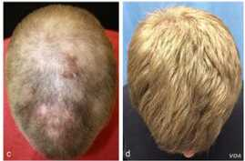 Hair growth on the patient's head is seen five months into treatment and eight months into treatment. (Yale University)