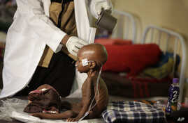 FILE - A malnourished child receives heath care at a feeding center run by Doctors Without Borders in Maiduguri, Nigeria, Aug. 29, 2016. The U.N. Security Council on March 3, 2017, kicked off a visit to spotlight Africa's worst humanitarian crisis as