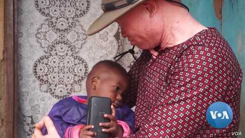 Malawi Musician Fights Myths About Albinism