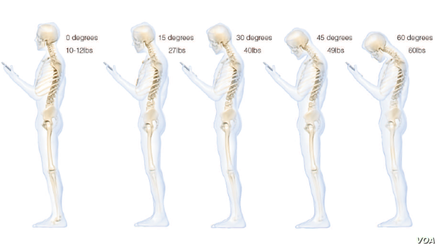 This chart shows the stress put on the neck and spine as a result of hunching over a smartphone (Courtesy Dr. Ken Hansraj M.D.)