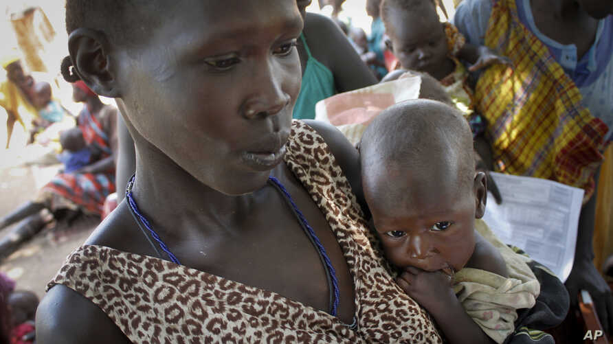 FILE - In this photo taken Friday, Sept. 16, 2016, Elizabeth Athiel holds her 8-month-old malnourished daughter Anger, at a UNICEF feeding center in Aweil, South Sudan.