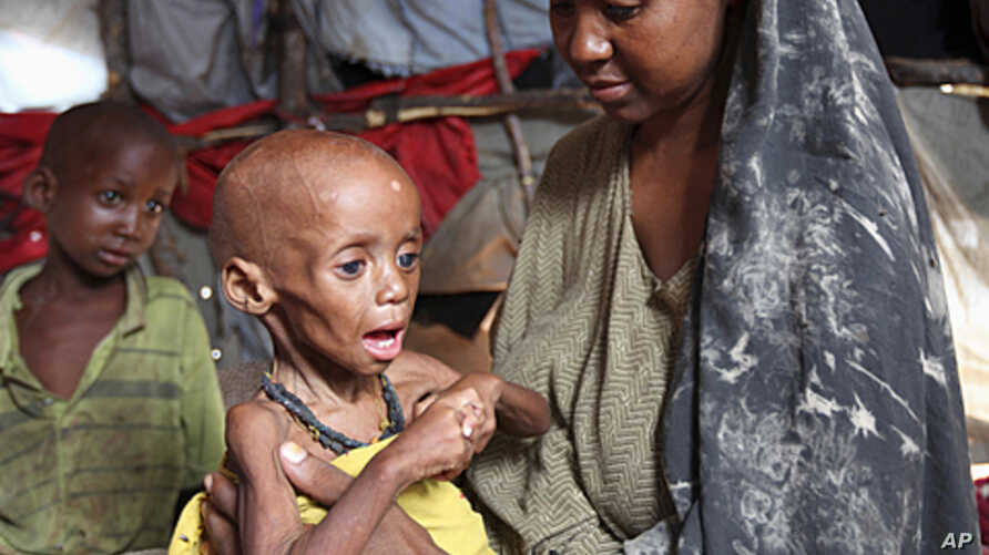 An internally displaced Somali woman holds her malnourished child inside their temporary home in Hodan district, south of Somalia's capital Mogadishu, September 20, 2011.