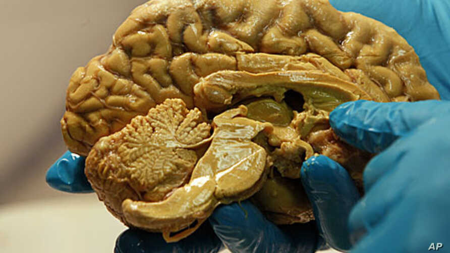 A researcher holds a human brain (file photo)
