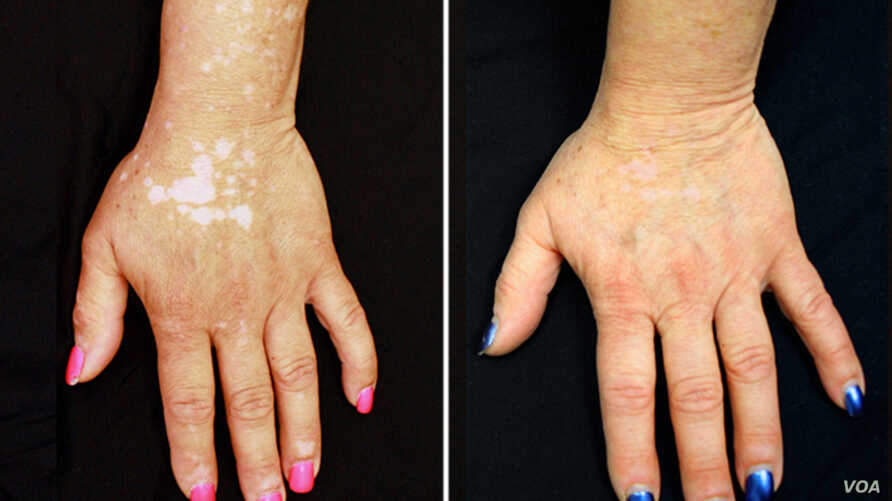 Study: Drug Reverses Condition That Attacks Pigment in Skin