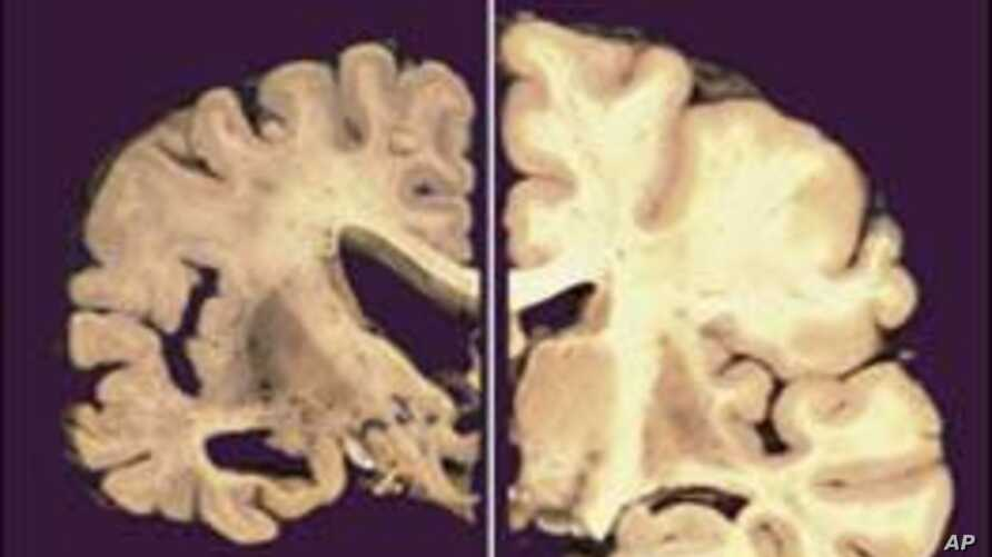This undated image provided by Merck & Co., shows a cross section of a normal brain (right) and one of a brain damaged by advanced Alzheimer's disease, December 3, 2012