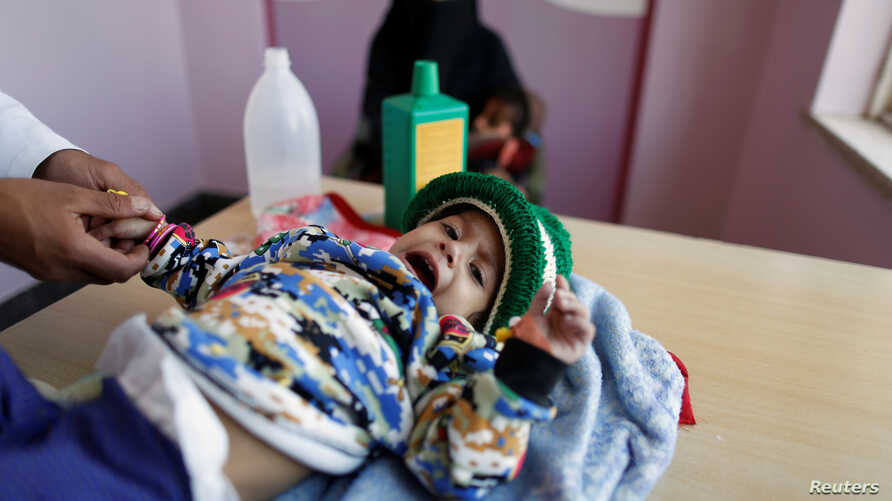 A girl is being treated at a malnutrition treatment center in Sanaa, Yemen, Nov. 4, 2017.
