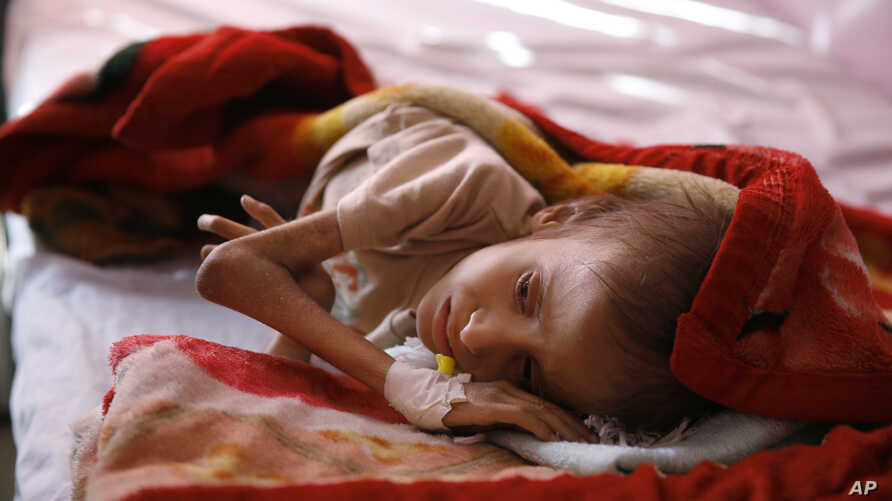 FILE - A malnourished child lies in a bed waiting to receive treatment at a therapeutic feeding center in a hospital in Sana'a, Yemen, Jan. 24, 2016.