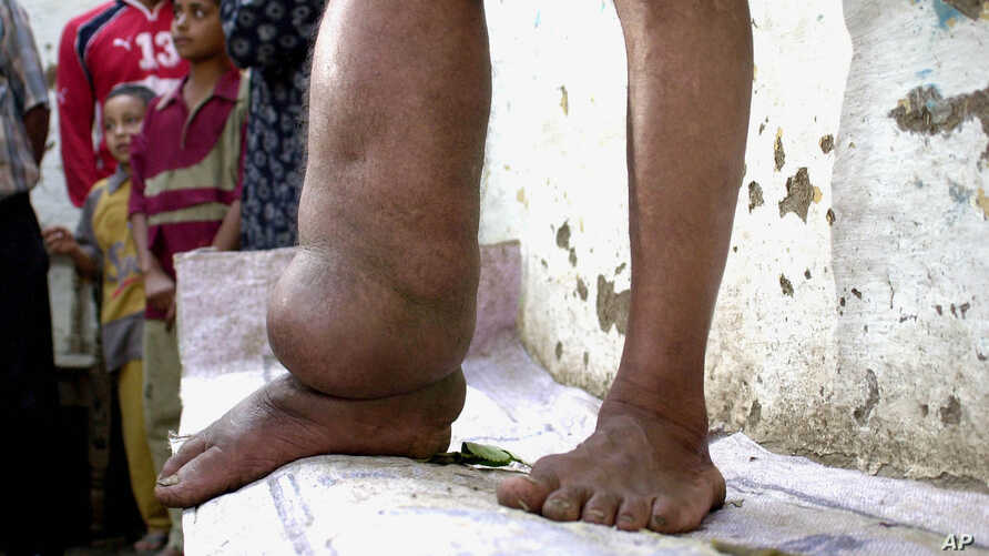 FILE - A victim of  lyphatic filariasis, also known as elephantiasis, is pictured in Garawan, Egypt, in 2004.