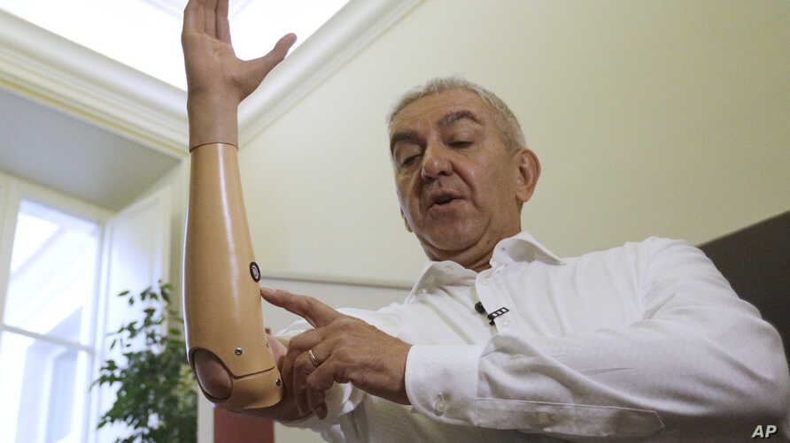 Marco Zambelli shows his prosthetic hand during an interview with the Associated Press in Rome, May 10, 2018.