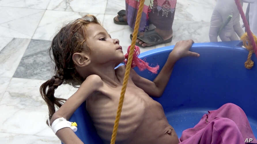 FILE - In this Aug. 25, 2018 file image made from video, a severely malnourished girl is weighed at the Aslam Health Center in Hajjah, Yemen. The U.N. food agency said Wednesday, Sept. 19, 2018, that time is running out for aid groups operating in Ye