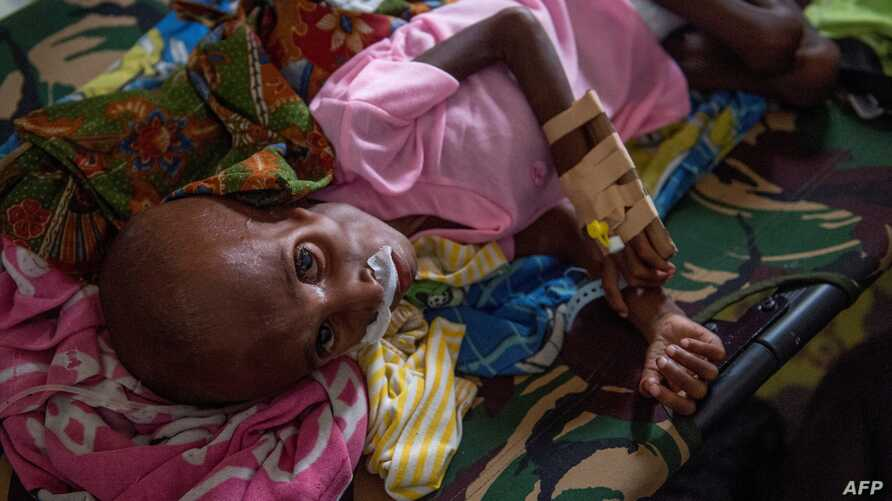 FILE - A Papuan child suffering from malnutrition lies in a hospital bed for treatment in Agats, the capital of Asmat district in Indonesia's easternmost Papua province, Jan. 26, 2018.