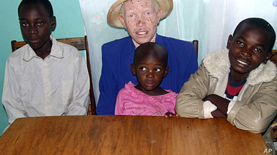Mary Owido sits with her children Steven, left, Stella, and Brayan. She is albino, lacking pigmentation responsible for giving color to skin, eyes and hair. Mary says she is only comfortable when at work or at home with her husband and children, (Fil