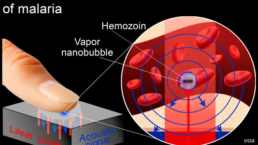 A possible rapid, non-invasive test for malaria infection detects tiny vapor nanobubbles produced by the malaria parasite when it is zapped by a short laser pulse. (Rice University)