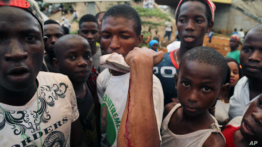 A man shows on his arm where he was injured at a rally in support of  UFDG presidential candidate Cellou Dalein Diallo in Conakry, Guinea, Oct. 8, 2015.