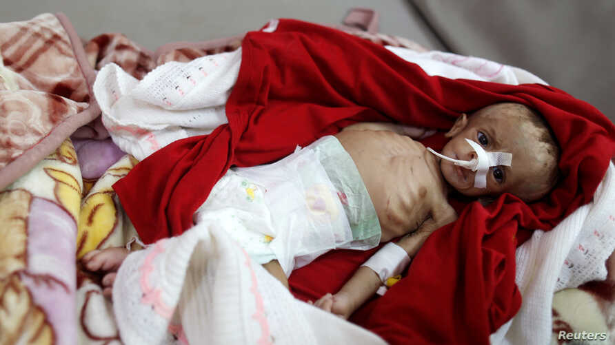 A malnourished boy lies on a bed in the malnutrition ward of al-Sabeen hospital in Sana'a, Yemen, Sept. 10, 2018.