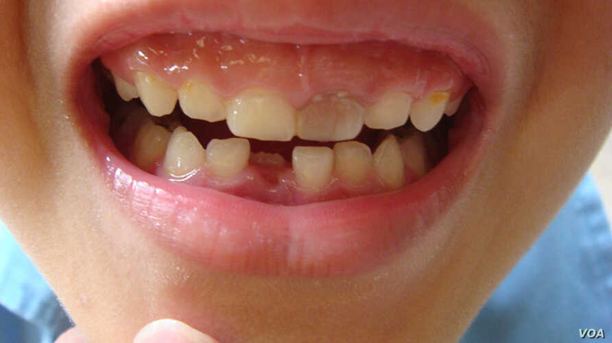 """Chinese scientists have grown teeth from stem cells cultured from human urine. (Via <a href=""""http://www.flickr.com/photos/sugree/"""">Flickr</a>)"""