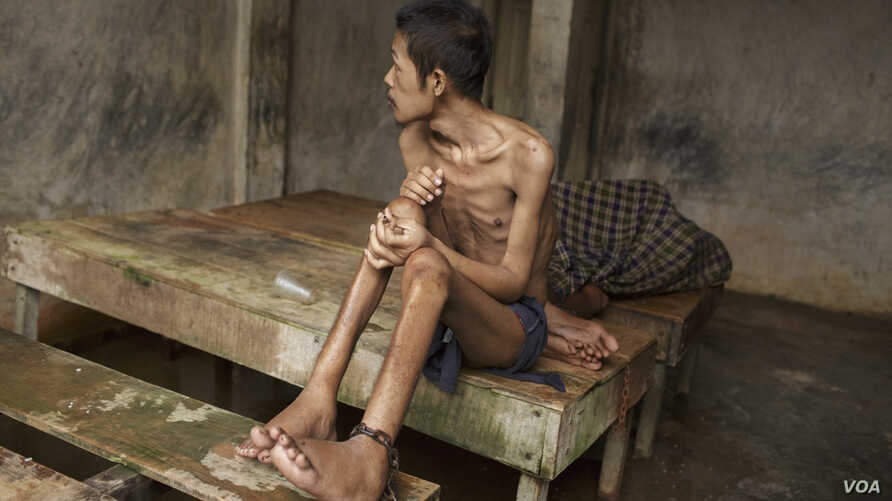 Before he died, this man lived chained to a platform at Kyai Syamsul's center in Brebes, Central Java. While there his ankles swelled, his body became emaciated. © 2012 Andrea Star Reese for Human Rights Watch