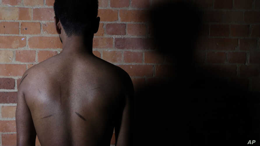 FILE - A Sri Lankan man known as Witness #205 shows the scars on his back during an interview in London, July 20, 2017.
