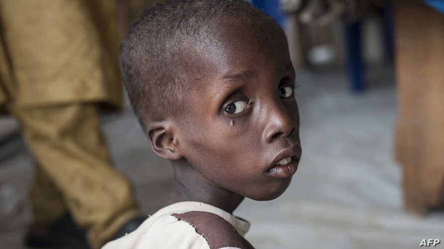 A boy suffering from severe acute malnutrition sits at one of the UNICEF nutrition clinics, in the Muna informal settlement, which houses nearly 16,000 IDPs (internally displaced people) in the outskirts of Maiduguri capital of Borno State, northeast