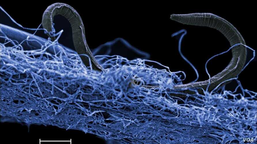 This photo shows a nematode (eukaryote) in a biofilm of microorganisms, an unidentified nematode (Poikilolaimus sp.) from Kopanang gold mine in South Africa,which lives 1.4km below the surface.