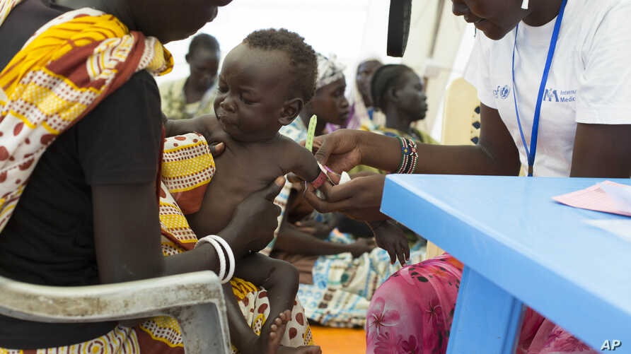 FILE - In this photo of Friday, July 25, 2014, a child with suspected malnutrition is examined at IMC nutrition program clinic in Malakal, South Sudan.