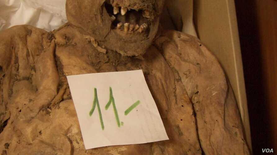 Hungarian mummies excavated from a church crypt in Hungary in 1995 are providing clues to the causes of colorectal cancer. (Photo courtesy of Tel Aviv University)