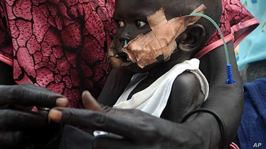 An infant with nasally inserted feeding tube at the nutrition center, Yida refugee camp, South Sudan, Dec. 12, 2011.