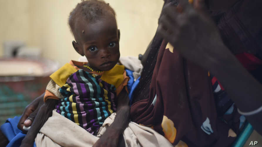 FILE - Nyagoah Taka Gatluak, a severely malnourished one-year-old child, sits on her mother's lap in the Doctors Without Borders clinic in Leer town, South Sudan.