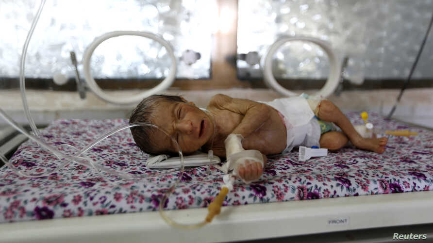 A premature baby lies in an incubator at the child care unit of a hospital in Sanaa, Yemen January 16, 2018.
