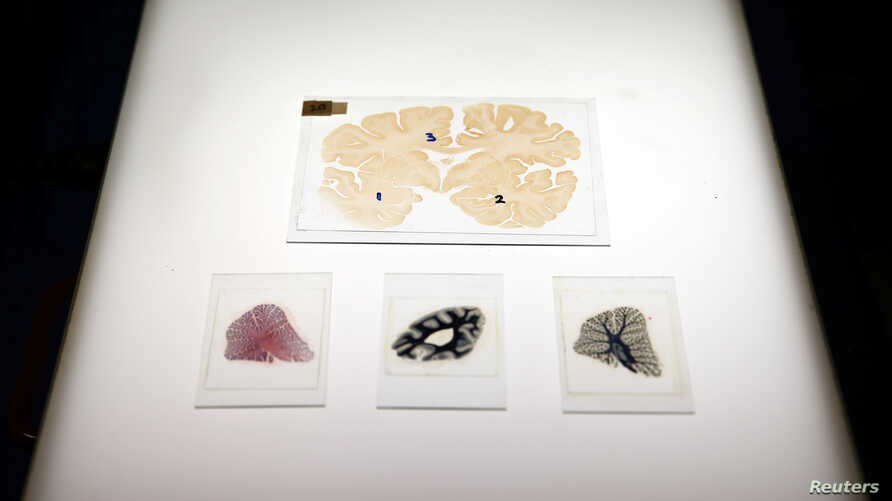 FILE - Microscopic slides of human brain are seen at the Multiple Sclerosis and Parkinson's UK Tissue Bank at Imperial College London, Britain, June 3, 2016.