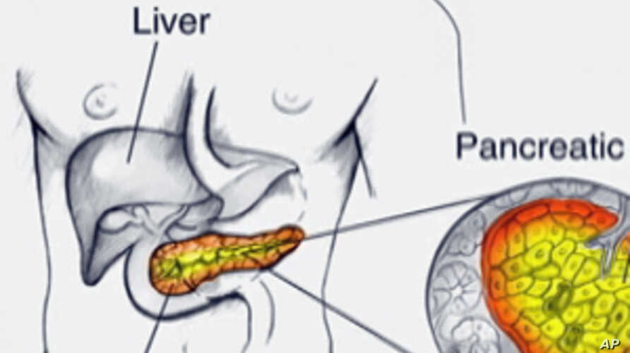 Scientists Report Potential Breakthrough in Pancreatic Cancer