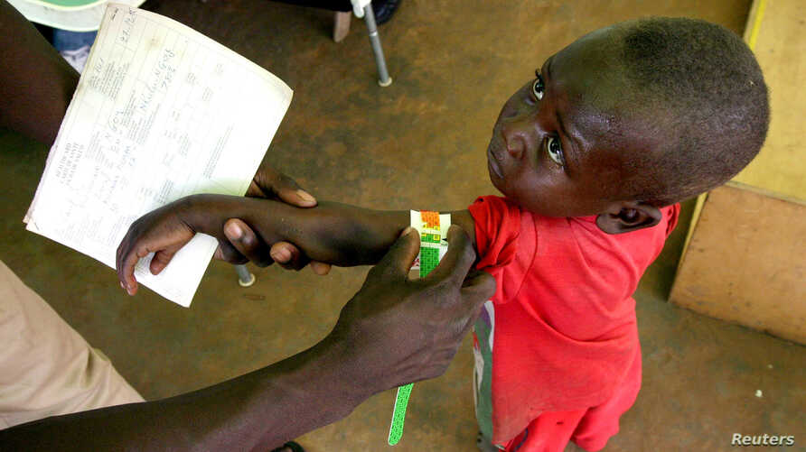 FILE - A Congolese boy has his arm measured for malnutrition in a clinic run by medical charity Medecins Sans Frontieres in the remote town of Dubie in Congo's southeastern Katanga province, March 18, 2006.