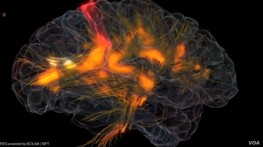 An image of activity in a human brain