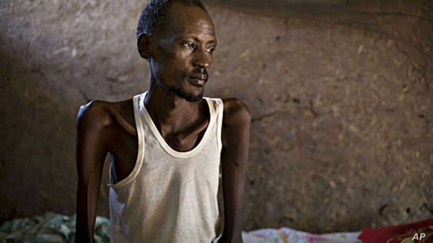 A patient with tuberculosis sits on a bed in 'Tuberculosis Village,' a separate health facility at a clinic run by the medical charity Doctors Without Borders, in the town of Nasir in southeastern Sudan. Along with malaria, tuberculosis is one of the