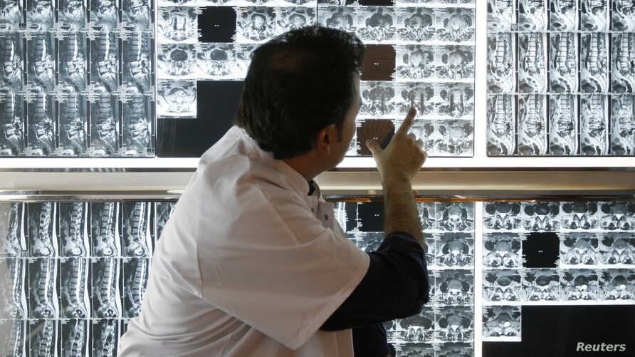 FILE - A radiologist examines X-rays of a patient at a hospital in Marseille, southern France, April 8, 2008.