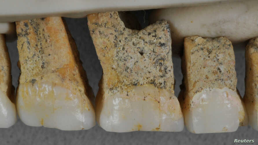 Right upper teeth of an individual of the newly identified species Homo luzonensis, found in Callao Cave on Luzon Island, the Philippines, are seen in this undated handout photo obtained by Reuters April 10, 2019.