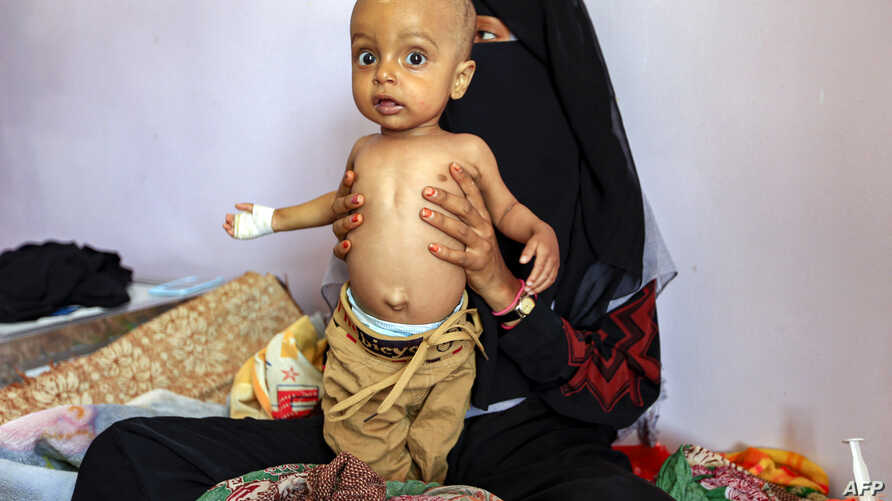 A woman holds a child suffering from malnutrition while sitting on a bed at a treatment center in al-Sabeen Maternal Hospital in the Houthi rebel-held Yemeni capital, Sanaa, June 22, 2019.