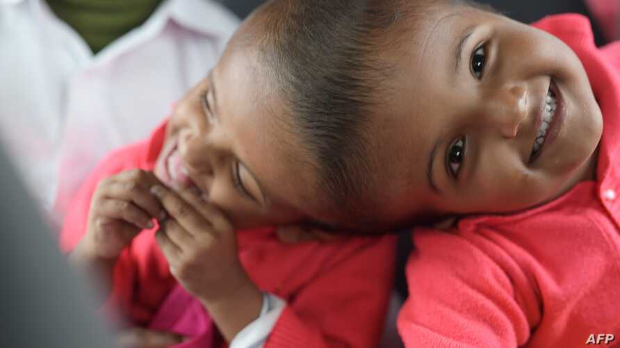 This handout photo received on Aug. 2 from the Action for Defenceless People Foundation shows conjoined Bangladeshi twins Rabeya and Rukaya during their visit to Budapest, in preparation for their their final separation surgery to be performed in Dhaka.