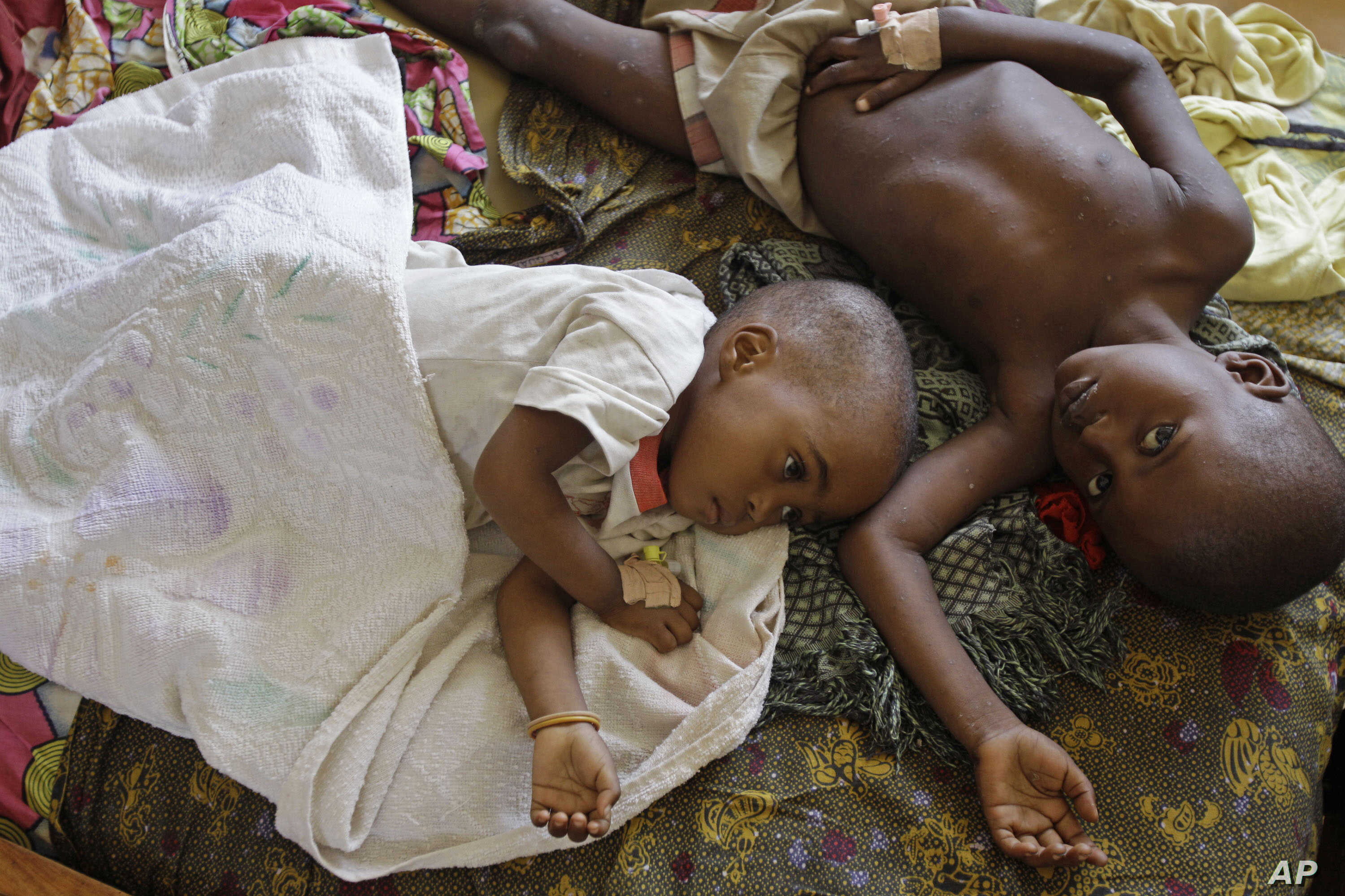 FILE -  Two children stricken down with malaria rest at the local hospital in the small village of Walikale, Congo.