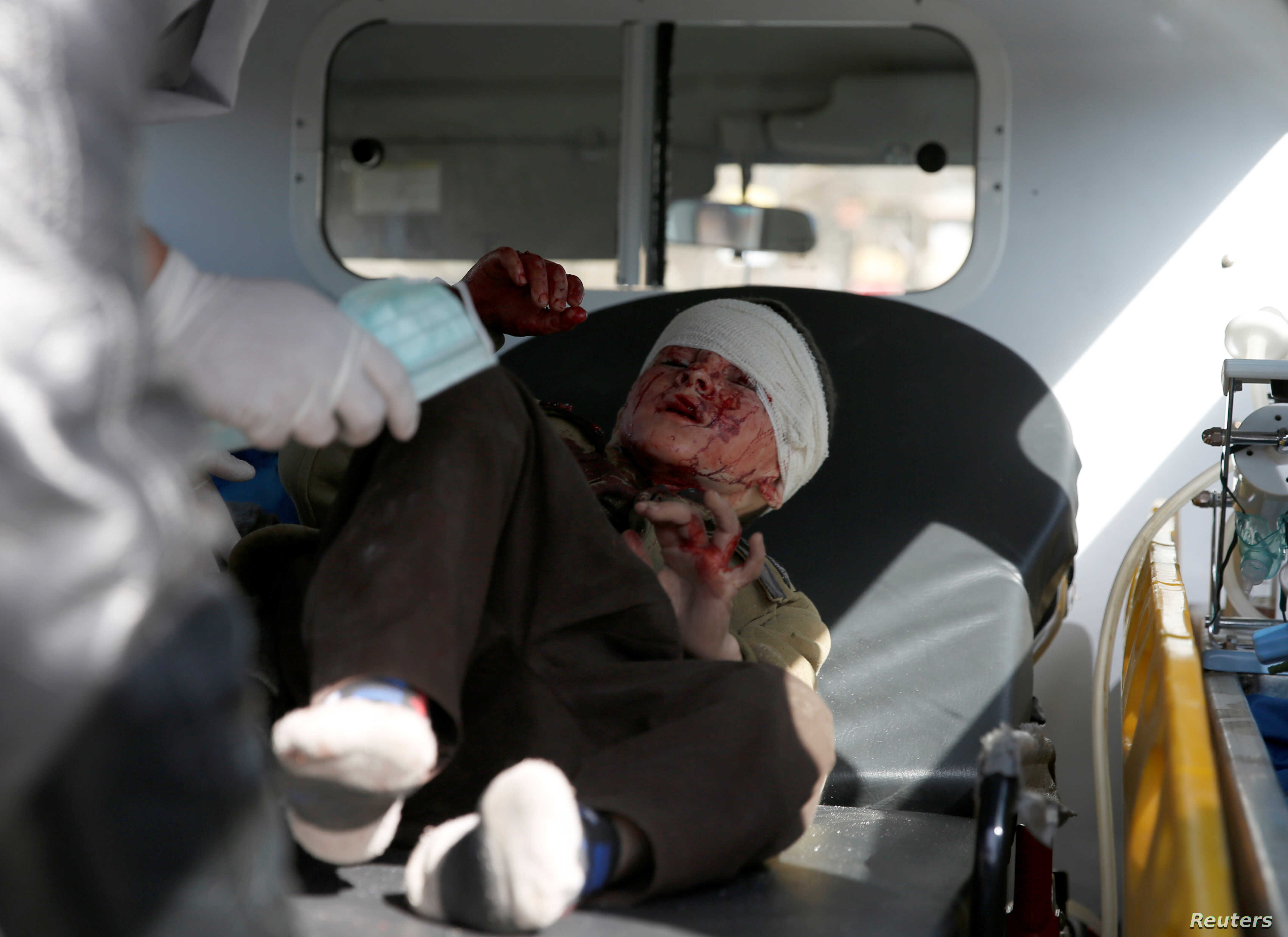 An injured boy is seen in an ambulance after a blast in Kabul, Afghanistan, Jan. 27, 2018.