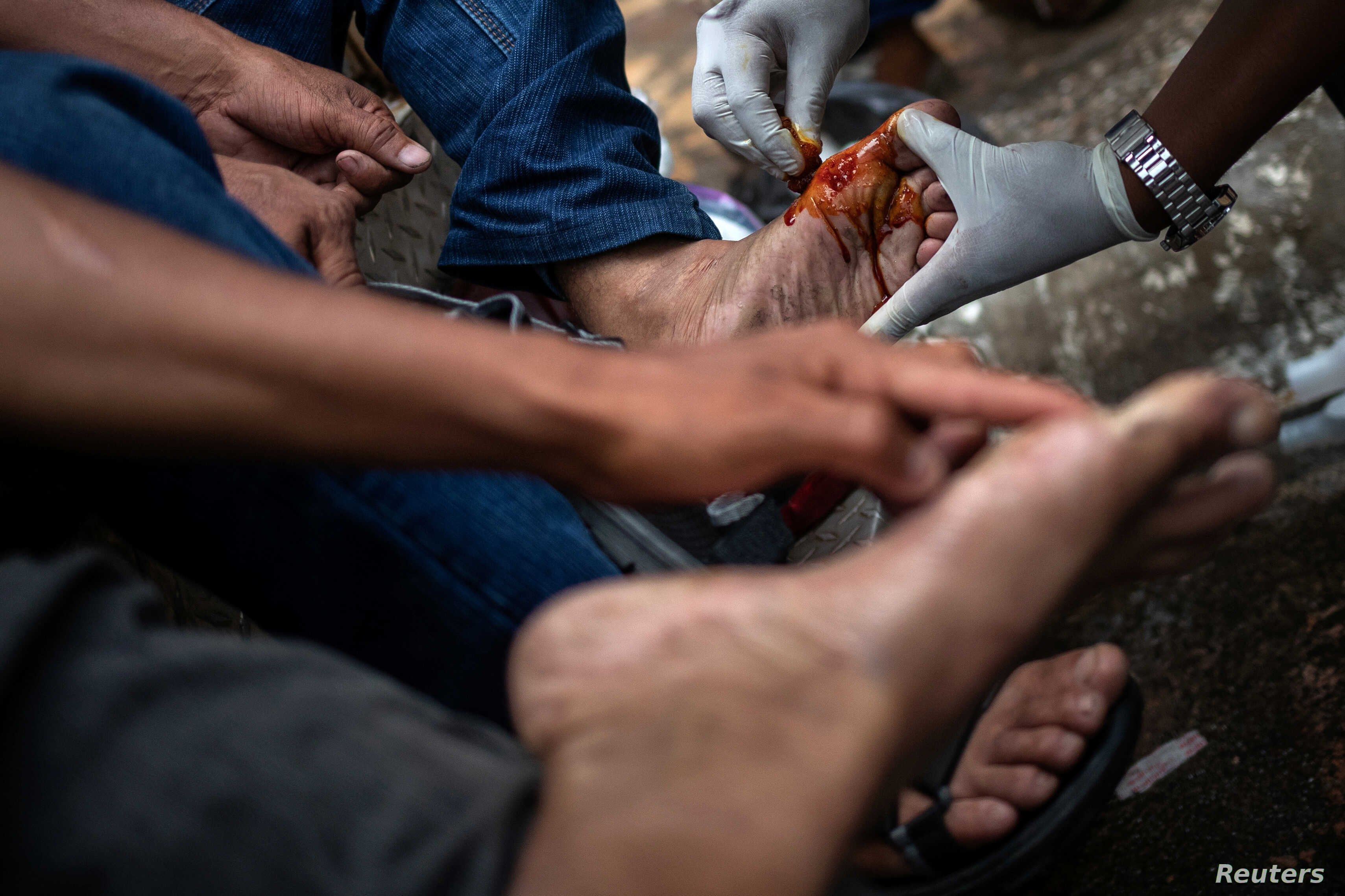 Migrants receive medical attention for blisters as they arrive to rest with a caravan of thousands from Central America en route to the United States, in theTapachula city center, Mexico, Oct. 21, 2018.