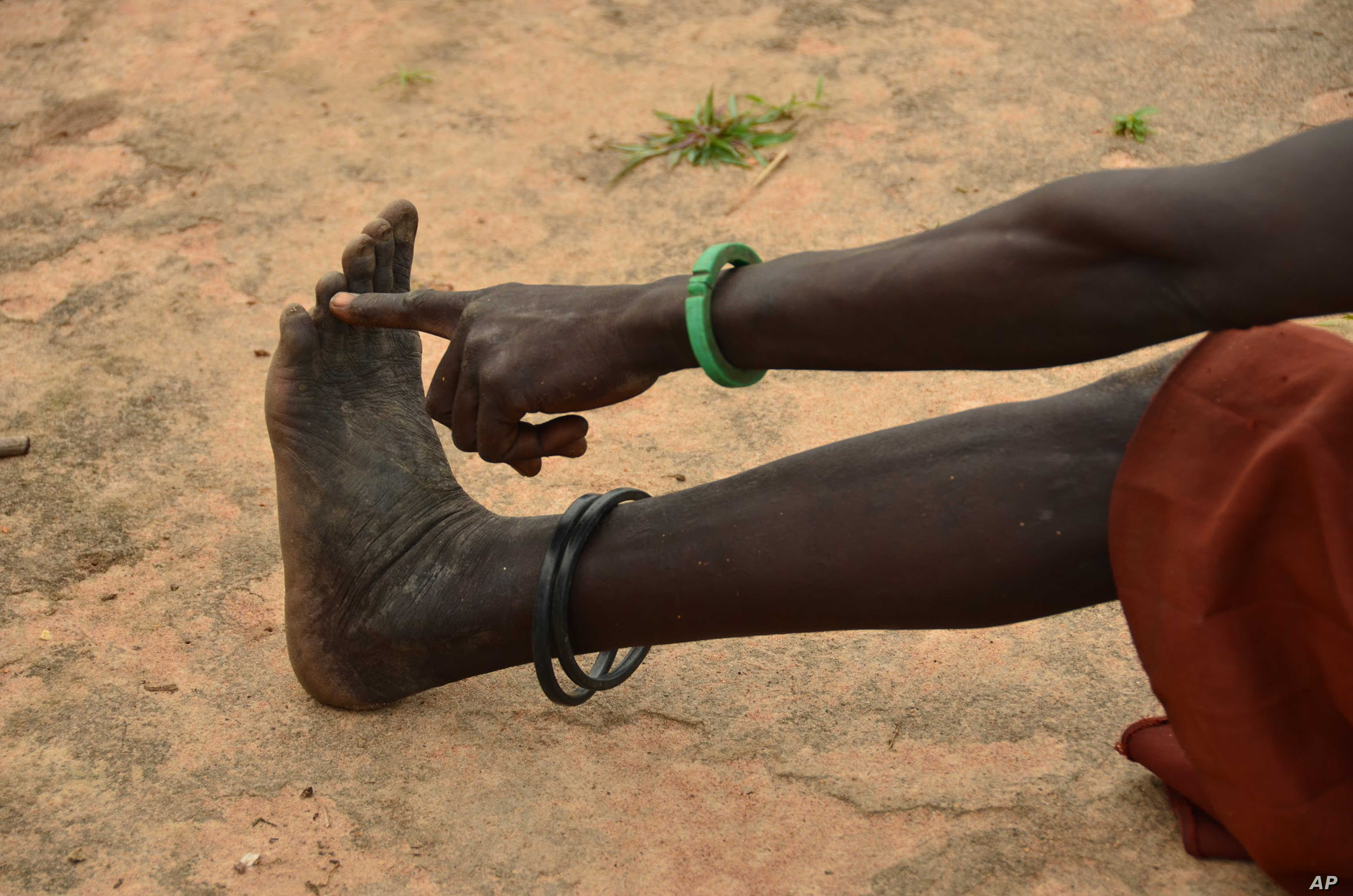 US Group: Eradication of Painful Guinea Worm Disease in