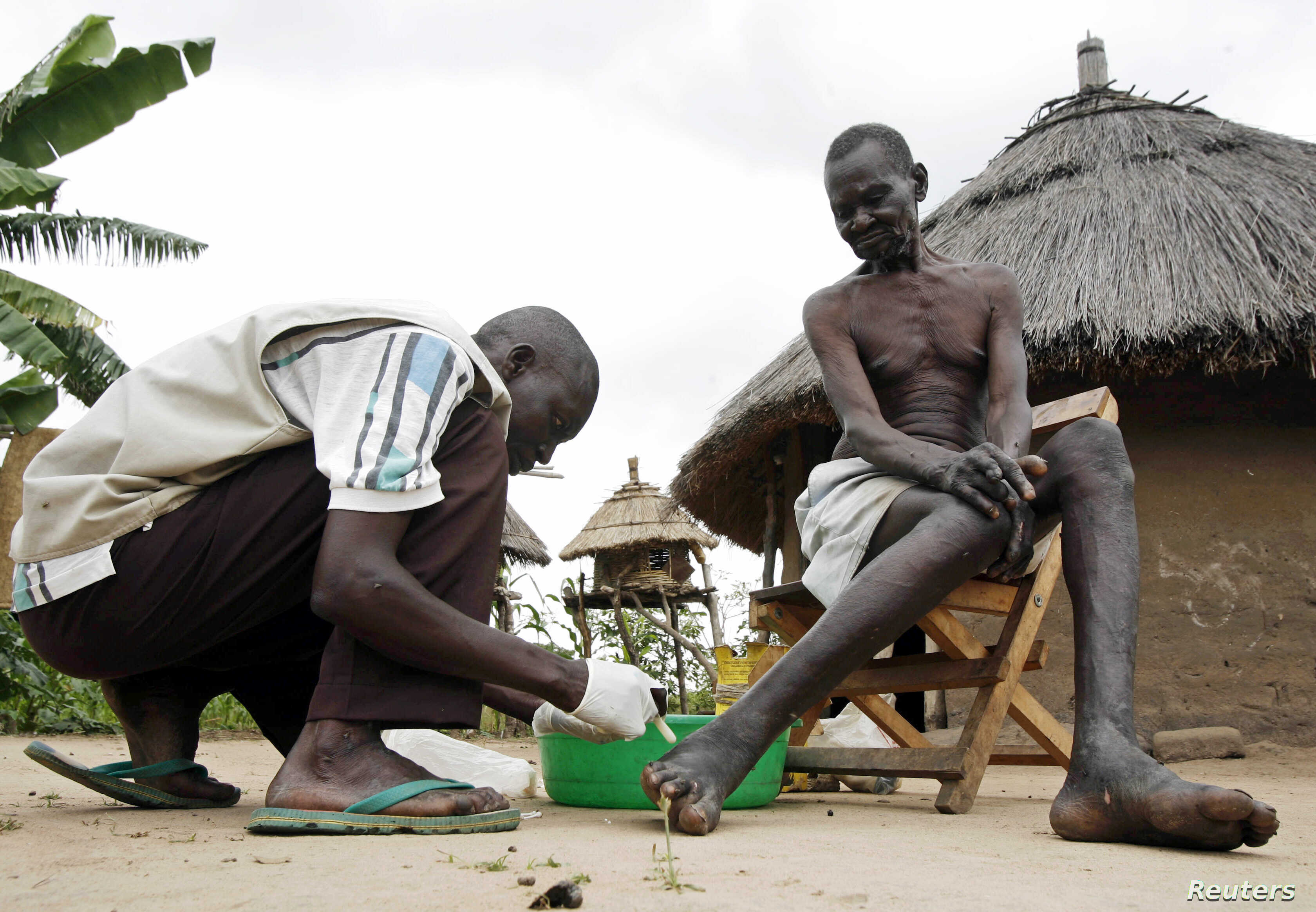 FILE - Apollo Longa-Kenyi (L), a leprosy counseling and care worker, administers topical cream to a blister on Benjamin Longa's foot in Mogiri, south Sudan July 7, 2007.