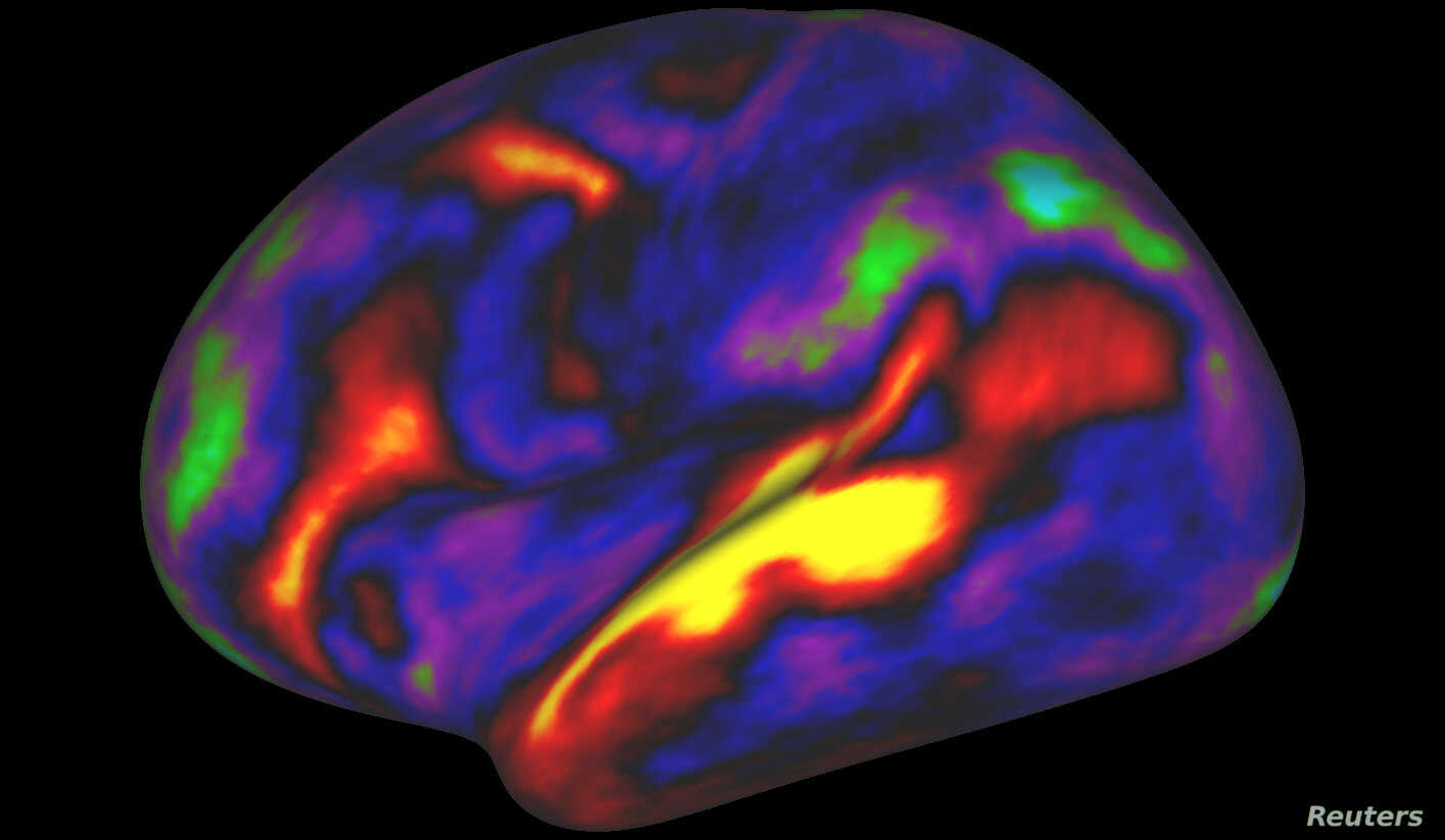 The pattern of brain activation (red, yellow) and deactivation (blue, green) in the left hemisphere when listening to stories while in the MRI scanner is pictured in this undated handout image.