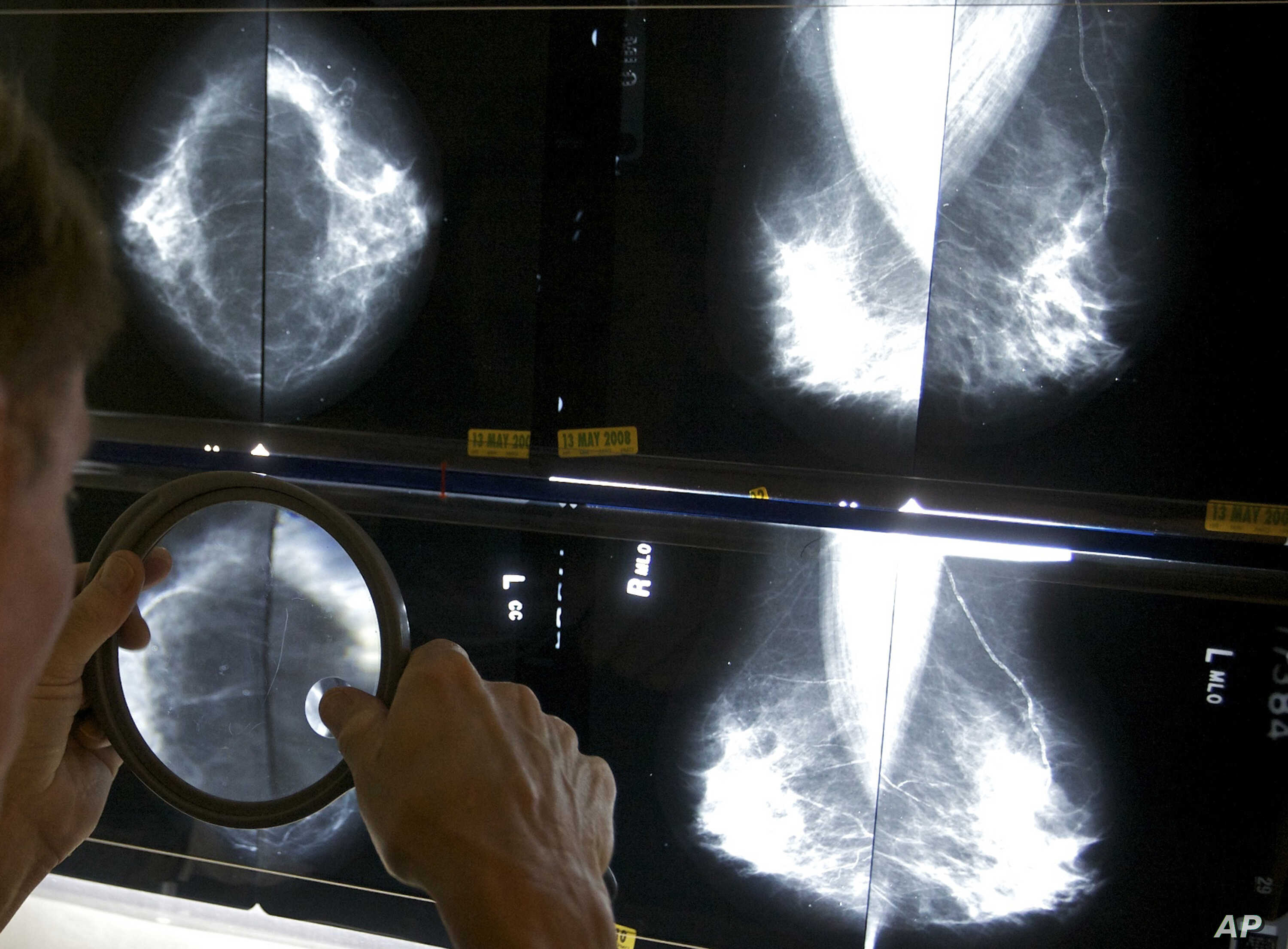 Study Discourages Chemotherapy for Some Breast Cancer